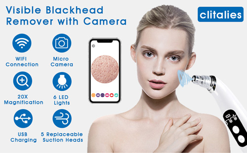 blackhead-remover-comes-camera-gunk-sucked-real-time-features